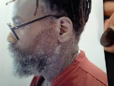 Photo showing part of the serious skin rash suffered by Mumia Abu-Jamal, traced to his untreated Hep-C infection. Prison lawyers sought unsuccessfully to have it barred as evidence at his hearing, claiming it was 'inflammatory'