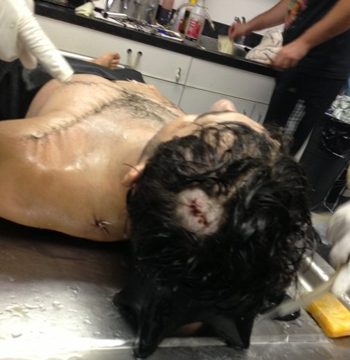 Todashev's body, showing the spot where an FBI agent fired a kill shot into the top of his head.