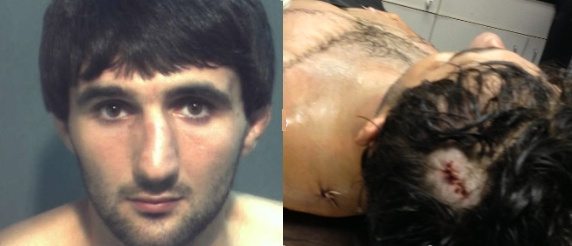 "Ibragim Todashev and autopsy photo showing FBI agent's ""kill shot"" to the head during a midnight household ""interrogation"""